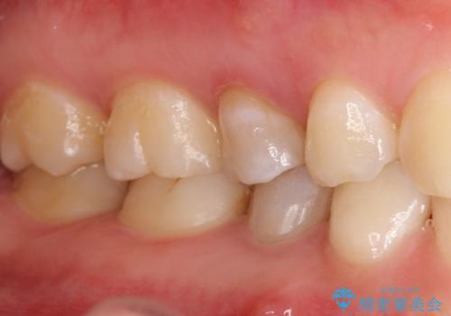 【サイナストラクト】歯肉に膿の出口がある歯の治療の治療前