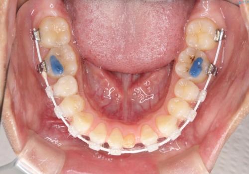 【空隙歯列】ワイヤー矯正で短期間に治療を終えたいの治療中