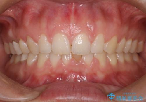 【前歯ブリッジ】下顎前歯の先天性欠如の補綴治療の治療前