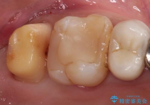 メタルボンドクラウンによる虫歯の治療の治療中