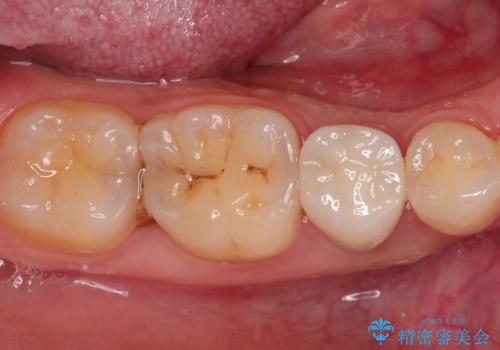 【サイナストラクト】歯肉に膿の出口がある歯の治療の治療後