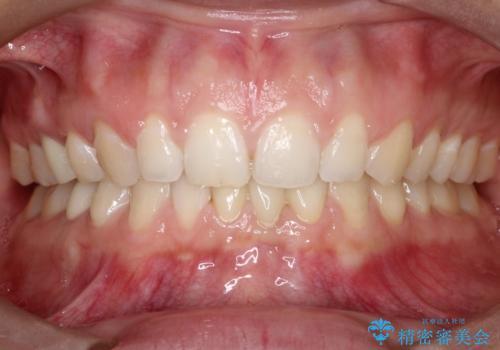 【前歯ブリッジ】下顎前歯の先天性欠如の補綴治療の治療後