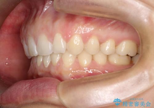 【空隙歯列】ワイヤー矯正で短期間に治療を終えたいの治療後