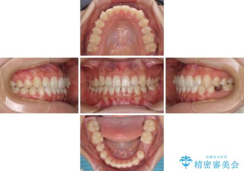 乳歯を抜いてインプラントに 咬み合わせ改善のインビザライン矯正の治療中