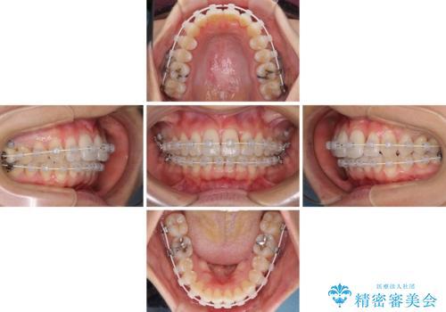 短期間で仕上げたい ワイヤーでの非抜歯矯正の治療中