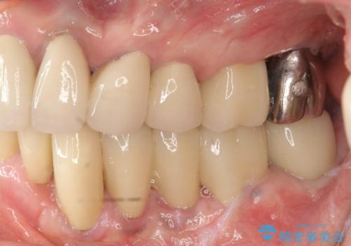少ない残存歯質 抜歯ギリギリの歯を残すの治療後