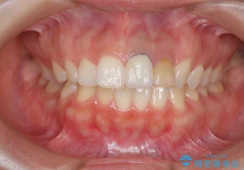[セラミック治療] 前歯の見た目をきれいにしたいの治療前