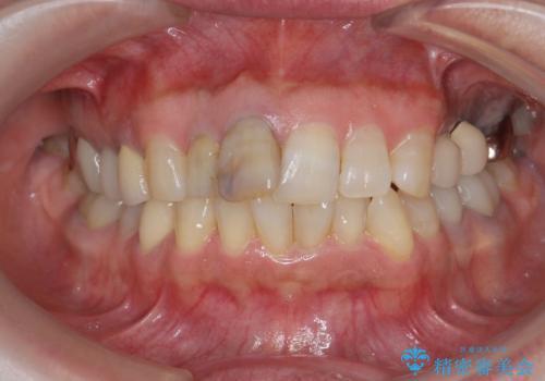 [ジルコニアクラウン]  前歯の見た目を良くしたいの治療前