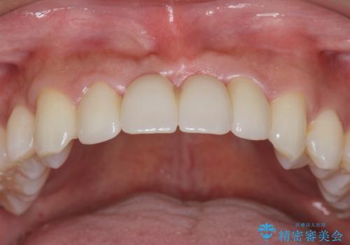 [ 審美歯科 ]前歯のブリッジをやりかえたいの症例 治療後