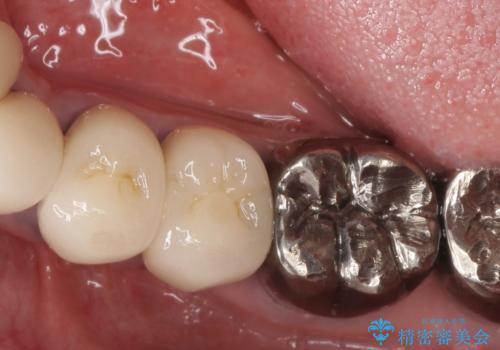 少ない残存歯質 抜歯ギリギリの歯を残すの治療前