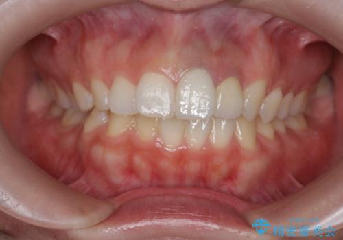 [セラミック治療] 前歯の見た目をきれいにしたいの治療後