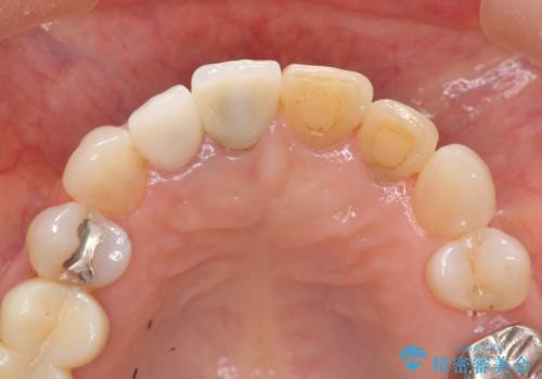 [ 前歯ジルコニアブリッジ ]  前歯の突き上げによる歯牙破折の治療前