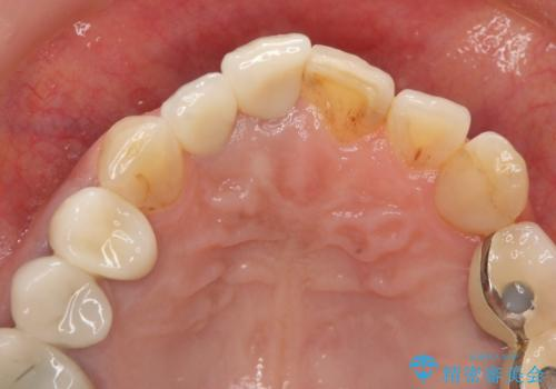 [ジルコニアクラウン]  前歯の見た目を良くしたいの治療後