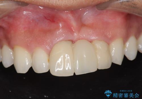 [ 審美歯科 ]前歯のブリッジをやりかえたいの治療前