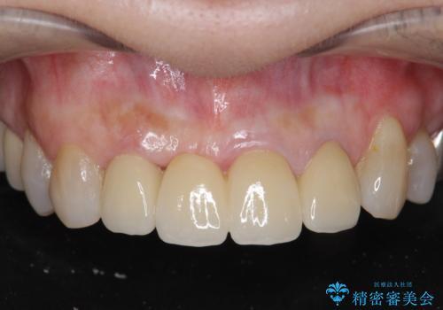 [ 前歯ジルコニアブリッジ ]  前歯の突き上げによる歯牙破折の症例 治療後
