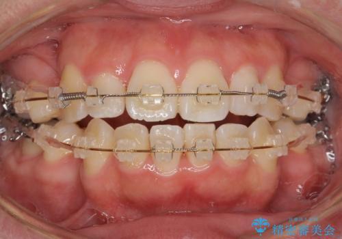 矮小歯 セラミッククラウンで綺麗に 30代女性の治療前