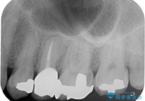 歯ぐきを押すと痛い 神経が死んでいる歯の治療 40代女性の治療後