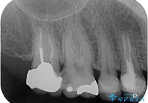 強い咬み合わせでむし歯が悪化 ゴールドインレーによるむし歯治療の治療前
