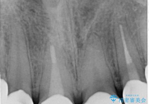 憧れの芸能人のような白い歯に 30代男性の治療後