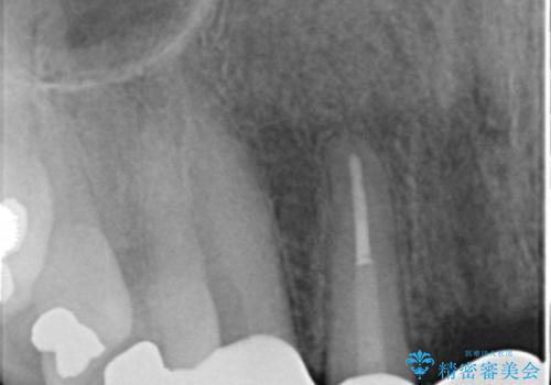 転んで前歯が2本ぬけた 自然なブリッジへ 60代男性の治療後