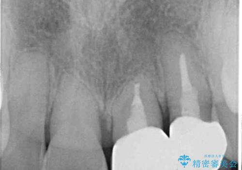 反対咬合で痛む前歯を改善 インビザラインによる矯正治療の治療後