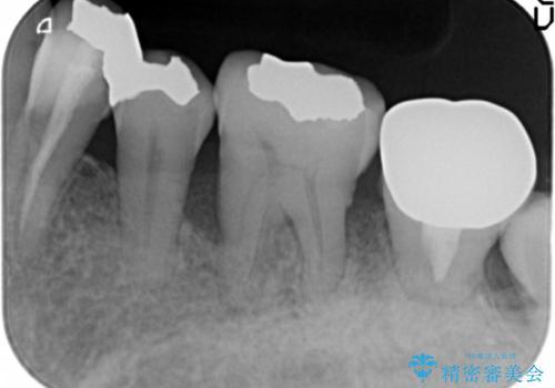 歯周病を治す 再生療法 50代男性の治療前