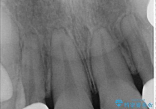 矮小歯 セラミッククラウンで綺麗に 30代女性の治療後