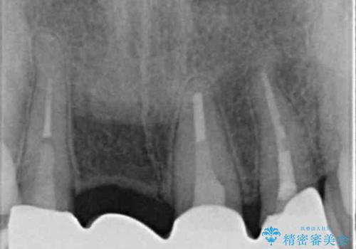 [ 前歯ジルコニアブリッジ ]  前歯の突き上げによる歯牙破折の治療後
