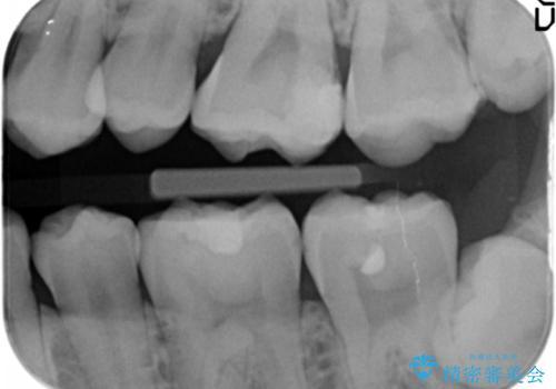 奥歯にフロスを通すと臭い 30代女性の治療前