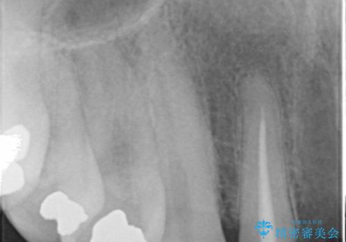 転んで前歯が2本ぬけた 自然なブリッジへ 60代男性の治療前