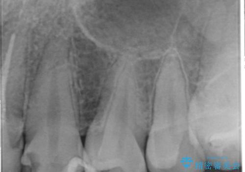 憧れの芸能人のような白い歯に 30代男性の治療前