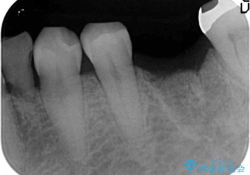 強い噛み合わせによる歯牙破折後のインプラント治療の治療前