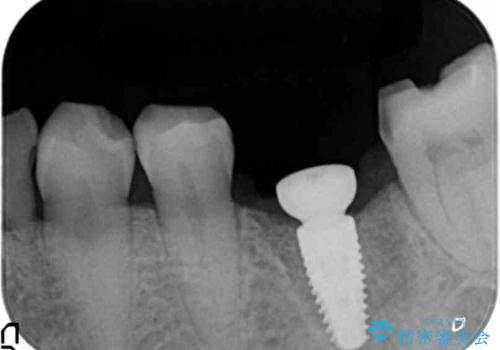 強い噛み合わせによる歯牙破折後のインプラント治療の治療中