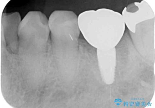 強い噛み合わせによる歯牙破折後のインプラント治療の治療後