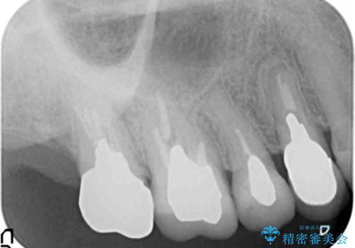 [ 根管治療・セラミッククラウン ]  噛むと痛い歯の治療の治療前