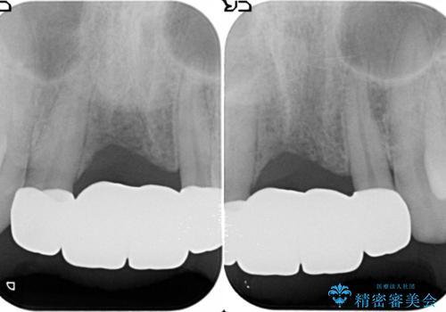 [ 審美歯科 ]前歯のブリッジをやりかえたいの治療後