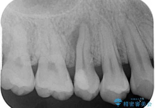 神経が死んで変色した歯 根管治療とオールセラミッククラウンの治療前