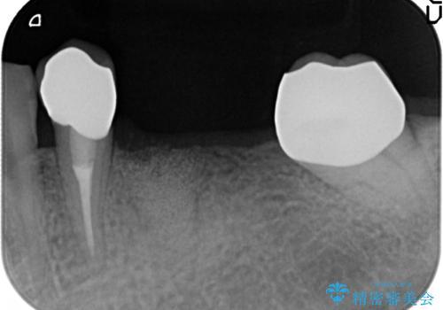 [ 2歯連続欠損 ] インプラントによる機能回復 の治療前
