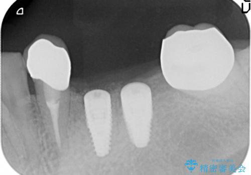 [ 2歯連続欠損 ] インプラントによる機能回復 の治療中