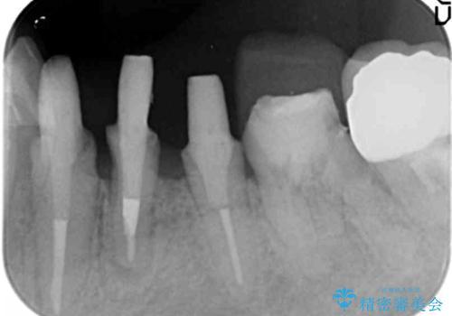 少ない残存歯質 抜歯ギリギリの歯を残すの治療中