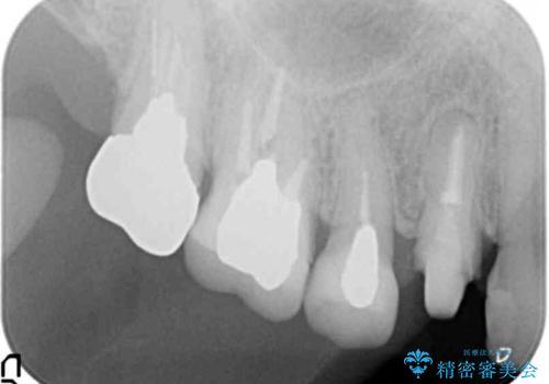 [ 根管治療・セラミッククラウン ]  噛むと痛い歯の治療の治療中