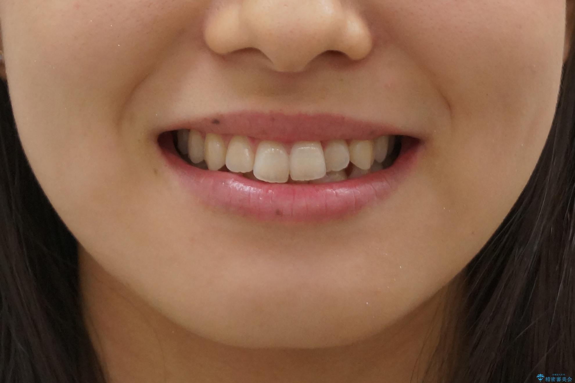 前歯のがたつき インビザラインで 下の奥歯を後ろに下げるの治療前(顔貌)