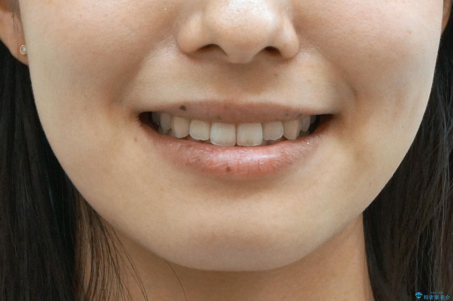 前歯のがたつき インビザラインで 下の奥歯を後ろに下げるの治療後(顔貌)
