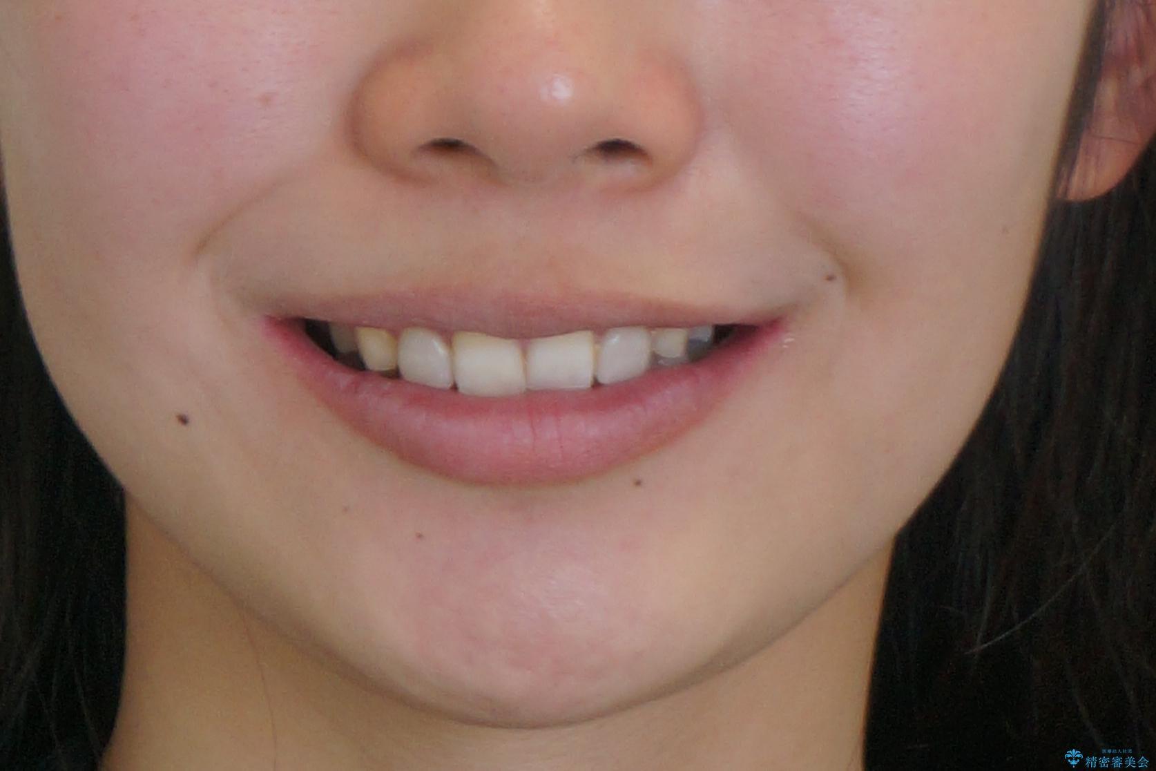 出っ歯を治したい 過蓋咬合の治療後(顔貌)