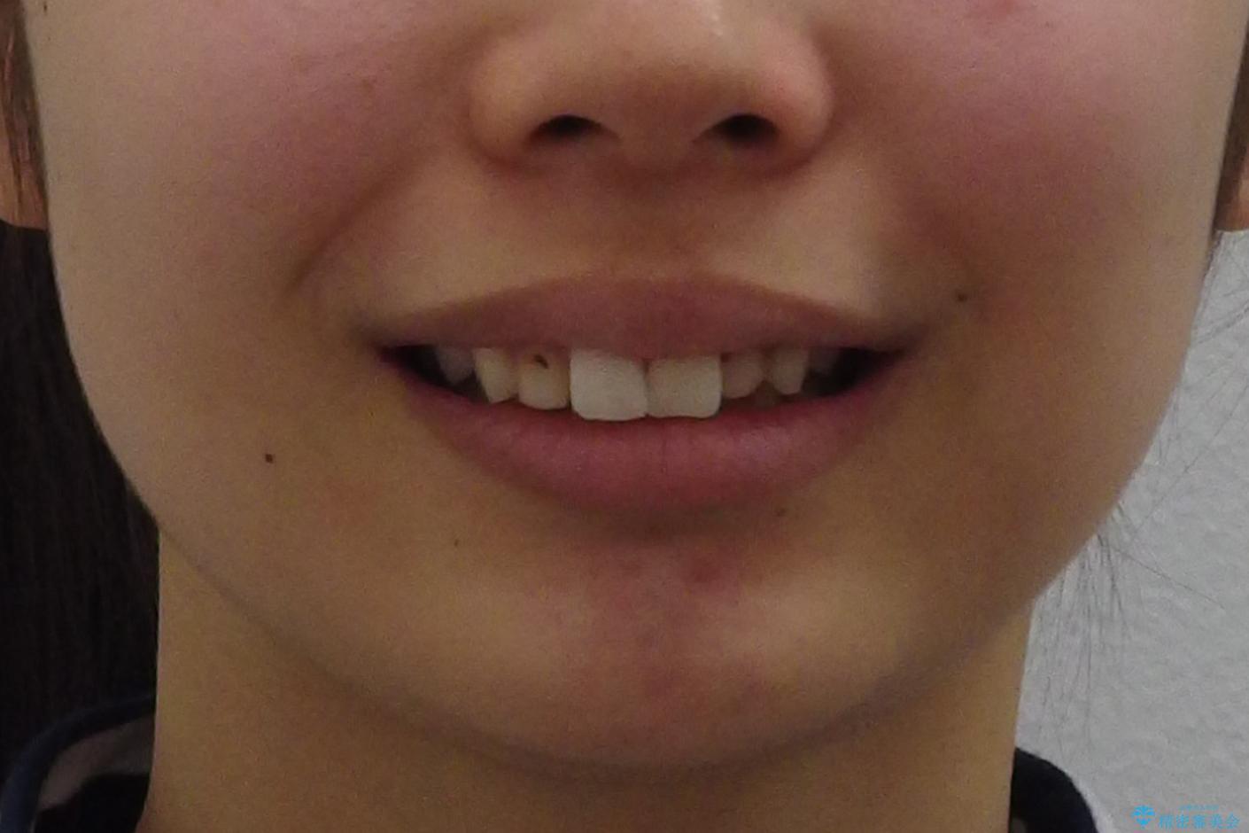 出っ歯を治したい 過蓋咬合の治療前(顔貌)