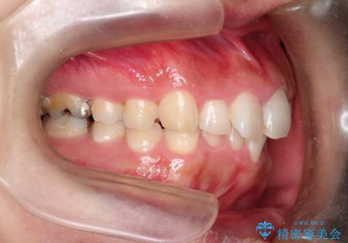 全体のガタガタをインビザラインできれいな歯並びへの治療前