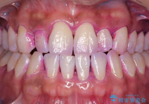 染め出しをして歯磨きチェックとPMTCの治療前