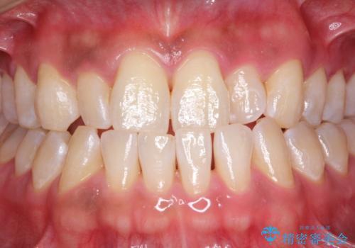染め出しをして歯磨きチェックとPMTCの治療後