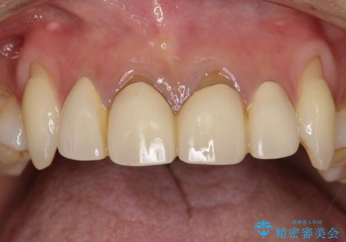 前歯のかぶせ物をオールセラミックへ 形を含めて理想の前歯への治療前