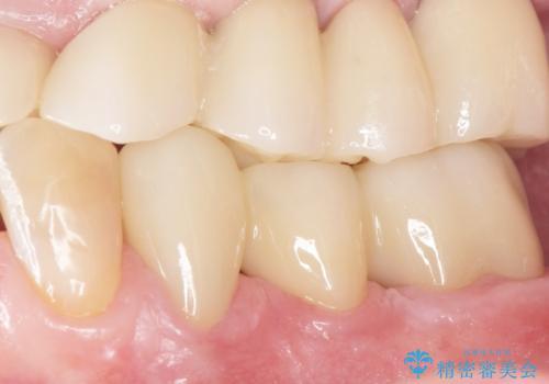 歯周病を治す 再生療法 50代男性の治療後